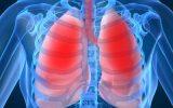 معافیت پزشکی سل ریه – بیماری های عفونی